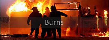 Services-Burns